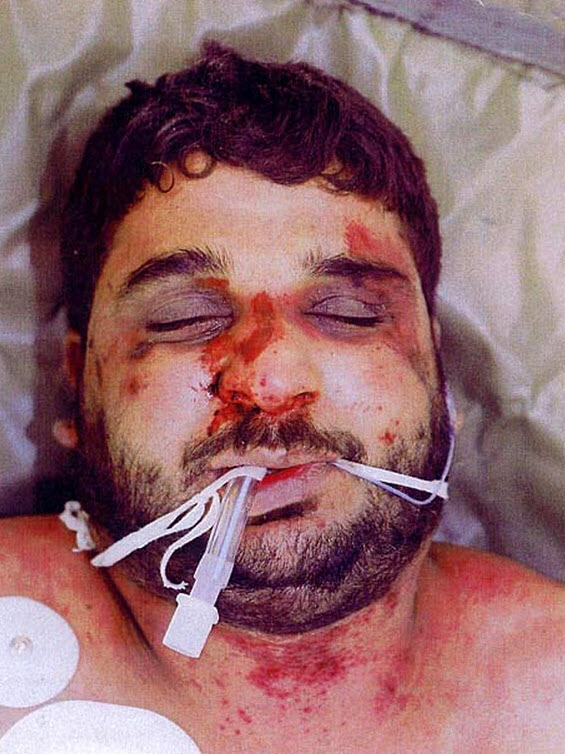 Baha Mousa, an Iraqi civilian tortured to death while in British Army custody in Basra, Iraq in September 2003