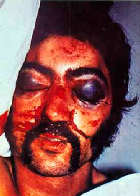 Eddie Carmichael, an Irish Republican prisoner beaten by British troops guarding the infamous Long Kesh concentration camp in October 1974