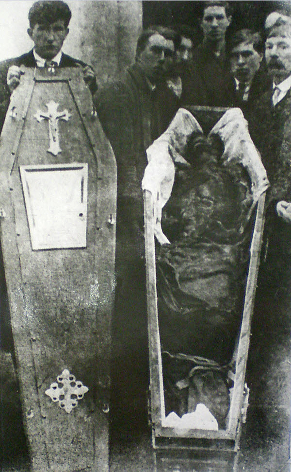 The mutilated remains of Harry Loughnane, age 22, Volunteer of the Irish Republican Army, tortured to death alongside his older brother Patrick, age 29, by the Royal Irish Constabulary or RIC, Britain's colonial police force in Ireland, 1920
