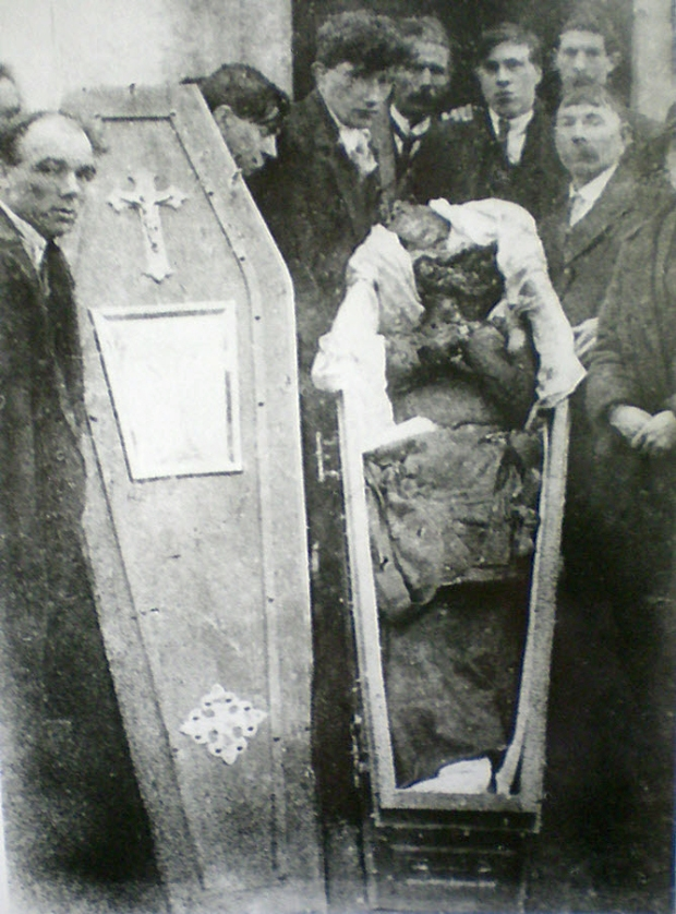 The mutilated body of Patrick Loughnane, age 29, Volunteer of the Irish Republican Army, tortured to death alongside his younger brother Harry, age 22, by the Royal Irish Constabulary, Britain's colonial police force in Ireland, 1920