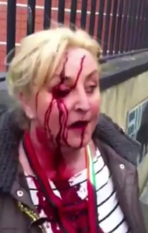 A protestor against the government-imposition of water taxes in Ireland injured in a confrontation with Gardaí