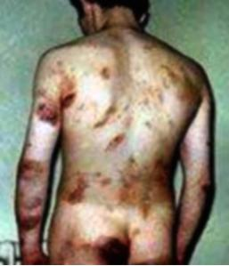 A contemporary medical photograph showing the injuries suffered by one of the Hooded Men, Irish civilian detainees tortured by the British Occupation Forces in Ireland, dating from the early 1970s